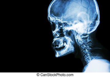 ruggegraat, cervicaal, mens, schedel, normaal