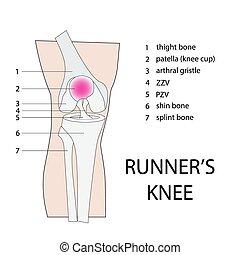 runners knee injury - runners knee. vector illustration of...