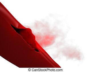 Ruptured Vein - Torn Artery