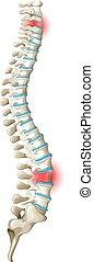 rygg, diagram, smärta, baksida
