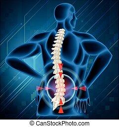 rygrad, bone, viser, smerte tilbage