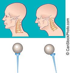 rygrad, halsen