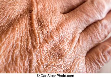 rynkigt skinn, på, hand
