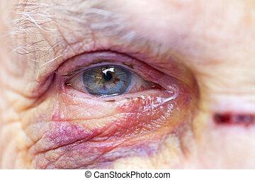 såradt, äldre kvinna