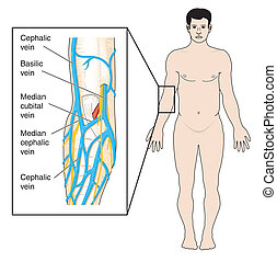 słojowanie, fossa, antecubital