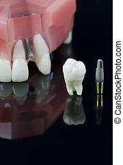 sabiduría, diente, implante, y, dientes, modelo