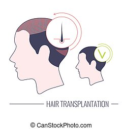 sablon, orvosi, lineáris, bánásmód, haj, sikeres, átültet