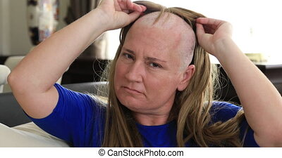 Middle aged sick, bald woman with cemotheraphy patient taking of her wig. Breast cancer survivor