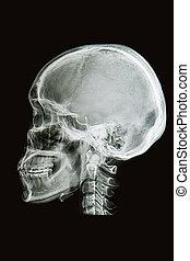 sagital, bild, eben, röntgenbilder, totenschädel
