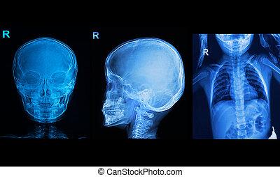 sammlung, von, kinder, röntgenbilder, bild, weisen, totenschädel, und, brust, bild