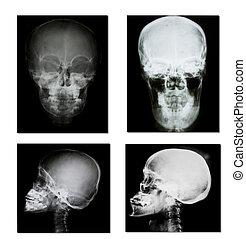 sammlung, von, röntgenaufnahme, (head, röntgenaufnahme, image)