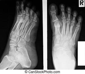 sammlung, von, röntgenaufnahme