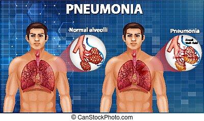 sano, alveoli, comparación, pneumonia