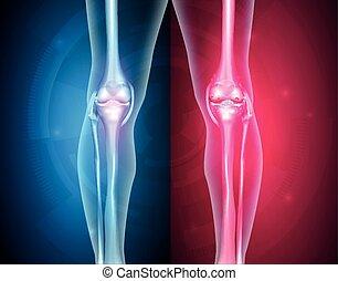 sano, rodilla, malsano, articulaciones