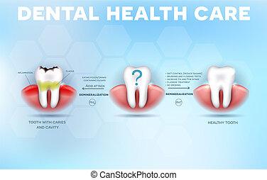 santé dentaire, pointes, soin