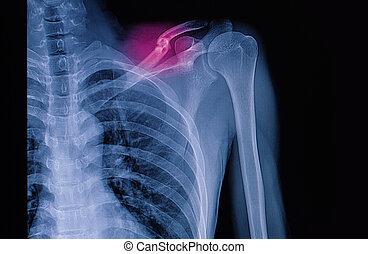 saque una radiografía la imagen, de, izquierda, clavícula,...