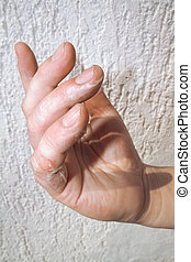 Scald on Fingers