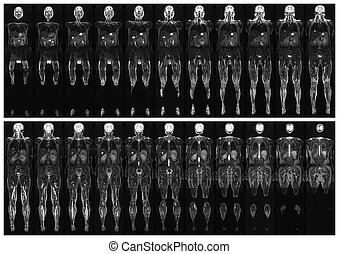 Scan the human body - Complete real MRI scan of the human...
