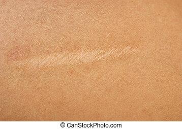 scar on skin - close up of scar on skin