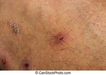scar on the human skin