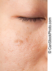 Women oily face with scar and skin problem