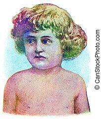 Scarlet fever, vintage engraved illustration.