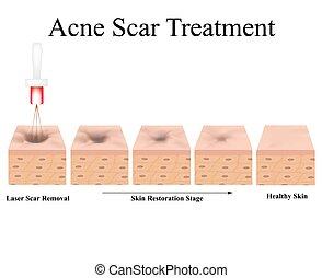 scars., structure, acne., laser, anatomique, cicatrice, peau, isolé, treatment., arrière-plan., atrophic, vecteur, acné, illustration