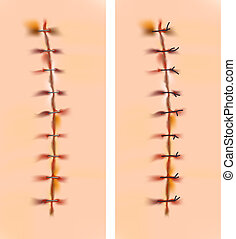 Scars with staples and sutures.  Vector illustration.