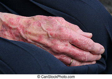Sceriosis - Extreme sceriosis on the hand of an elderly...