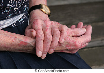 Extreme sceriosis skin disease on the hands of an elderly female.