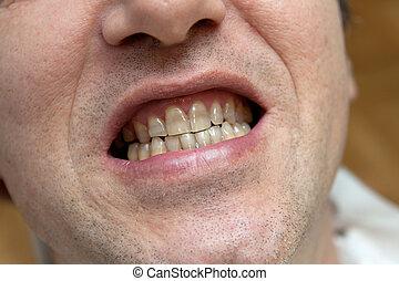 schaden, tabak, concept., gelber , teeth., mann