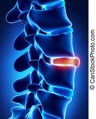 scheibe, gebrochen, röntgenaufnahme