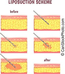 scheme of cosmetic surgery - liposuction illustration stages...