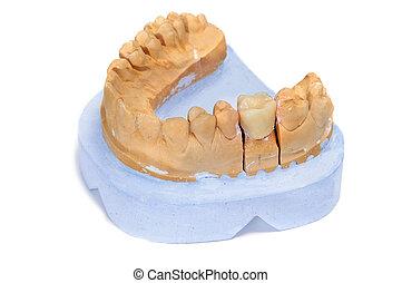 schimmel, dental