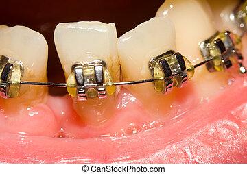schließen, von, lücke, mit, dental, hosenträger