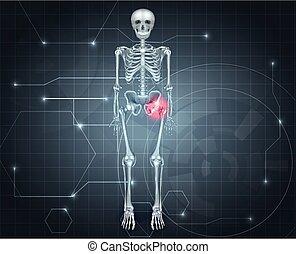 schmerz, gelenk, skelett, hüfte