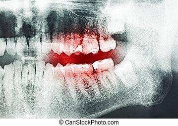 schmerz, röntgenaufnahme, zahn