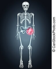 schmerz, skelett, hüfte