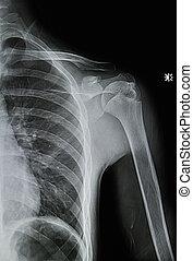 schouder, beeld, röntgenstralen