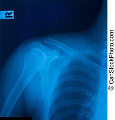 schulter, fracture., röntgenaufnahme, film