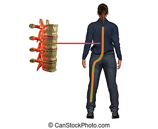Sciatica pain, a symptom of disturbance in the nerve of the spine, reaches the leg and causes discomfort. 3d illustration