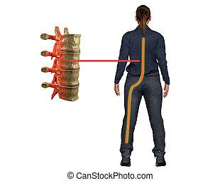 sciatique, portées, nerf, dos, jambe, douleur, causes, symptôme, perturbation, malaise