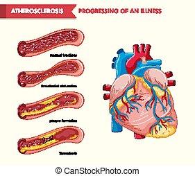 Scientific medical illustration of atherosclerosis