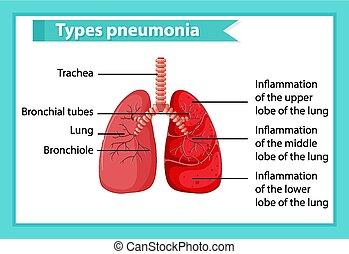 Scientific medical illustration of pneumonia