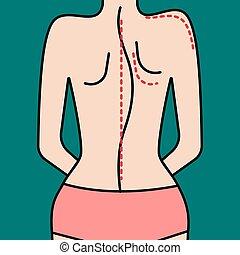 Scoliosis, curvature of spine. Illustration of back....
