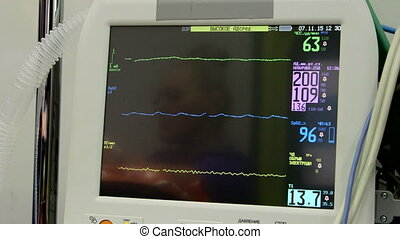 Screen of Russian multiparameter patient monitor in ambulance or hospital