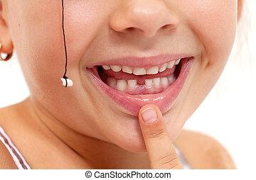 señalar, dientes perdidos, -, primer plano, niño, boca