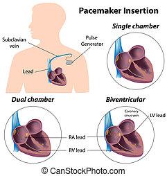 sebészet, pacemaker, beszúrás, eps8