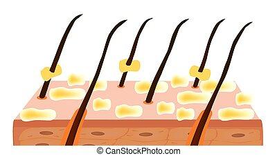 Seborrhea skin and hair. Dandruff seborrheic dermatitis....