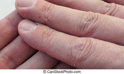 sec, problems., doigts, skin., mains, dermatologie, toqué